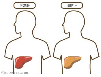 正常肝と脂肪肝のサムネイル画像